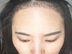 植发的术后注意事项有什么呢?