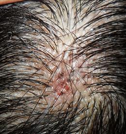 毛囊炎需要注意什么呢?