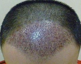 哪类人群不适合植发?